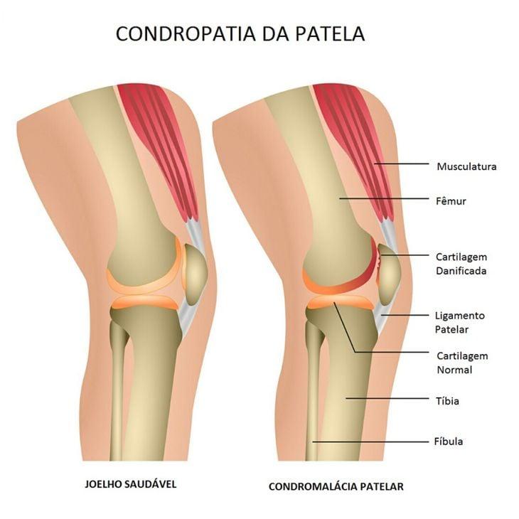 dor no fêmur perto do joelho