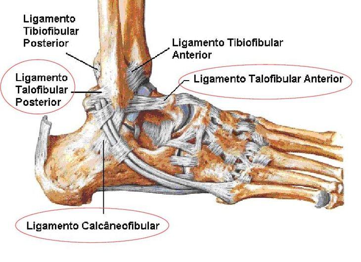 Entorse de tornozelo – Sintomas e tratamento | ACESSA com