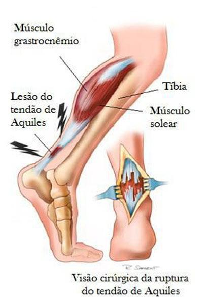Lesão da sóleo recuperação do músculo de tempo muscular